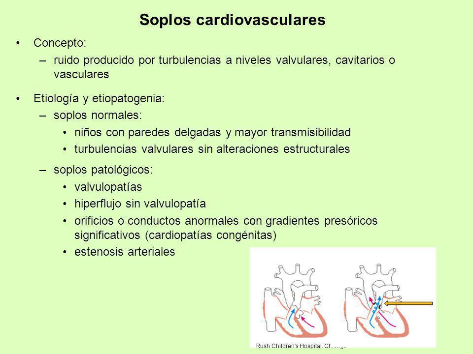 Soplos cardiovasculares Concepto: –ruido producido por turbulencias a niveles valvulares, cavitarios o vasculares Etiología y etiopatogenia: –soplos n