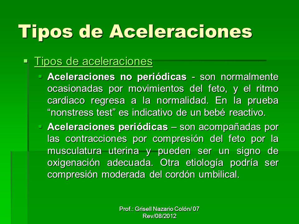 Tipos de Aceleraciones Tipos de aceleraciones Tipos de aceleraciones Tipos de aceleraciones Tipos de aceleraciones Aceleraciones no periódicas - son normalmente ocasionadas por movimientos del feto, y el ritmo cardiaco regresa a la normalidad.