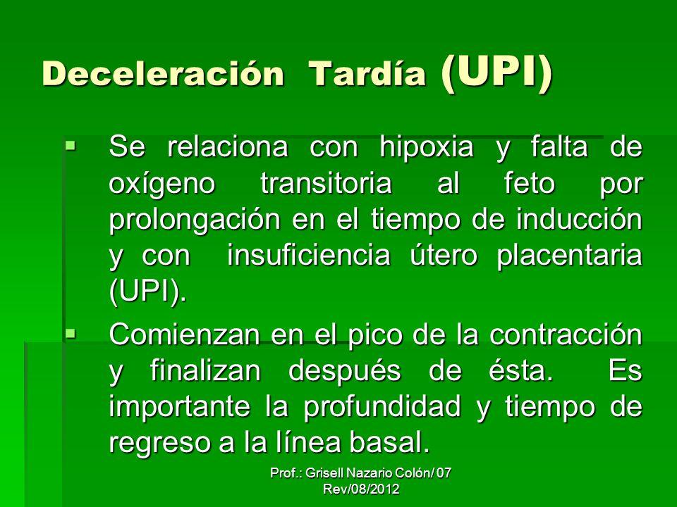 Deceleración Tardía (UPI) Se relaciona con hipoxia y falta de oxígeno transitoria al feto por prolongación en el tiempo de inducción y con insuficiencia útero placentaria (UPI).