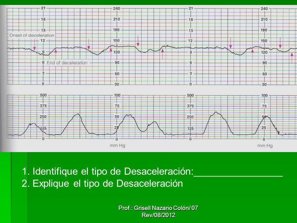 Prof.: Grisell Nazario Colón/ 07 Rev/08/2012 1. Identifique el tipo de Desaceleración:________________ 2. Explique el tipo de Desaceleración