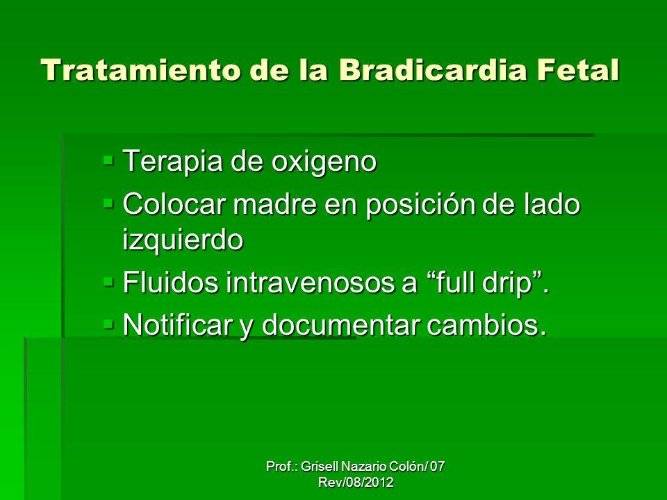 Taquicardia Taquicardia – es el incremento breve y temporal en los FHR mayor de 160 bpm/lpm.