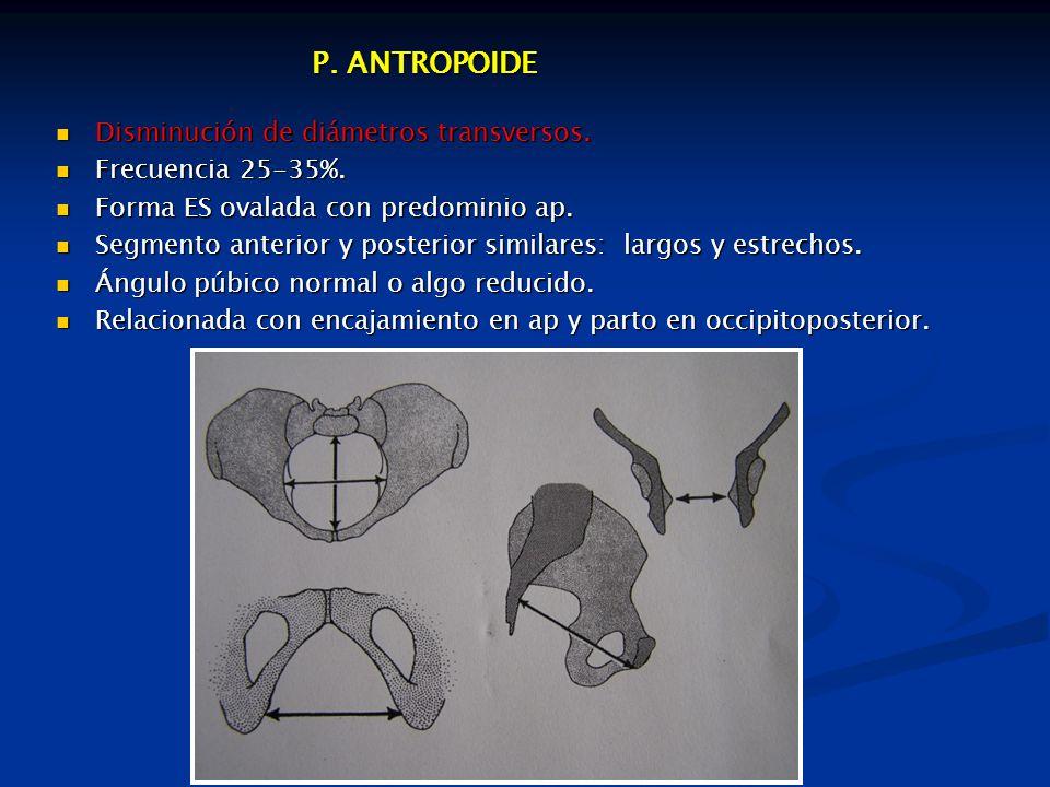 P.ANTROPOIDE P. ANTROPOIDE Disminución de diámetros transversos.
