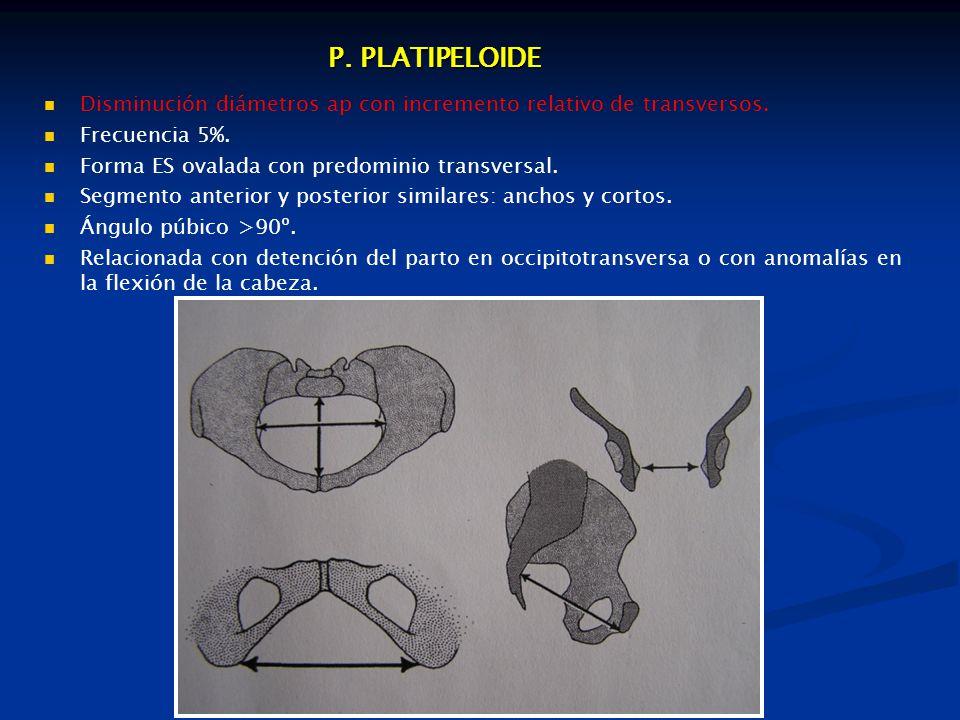 P.PLATIPELOIDE Disminución diámetros ap con incremento relativo de transversos.