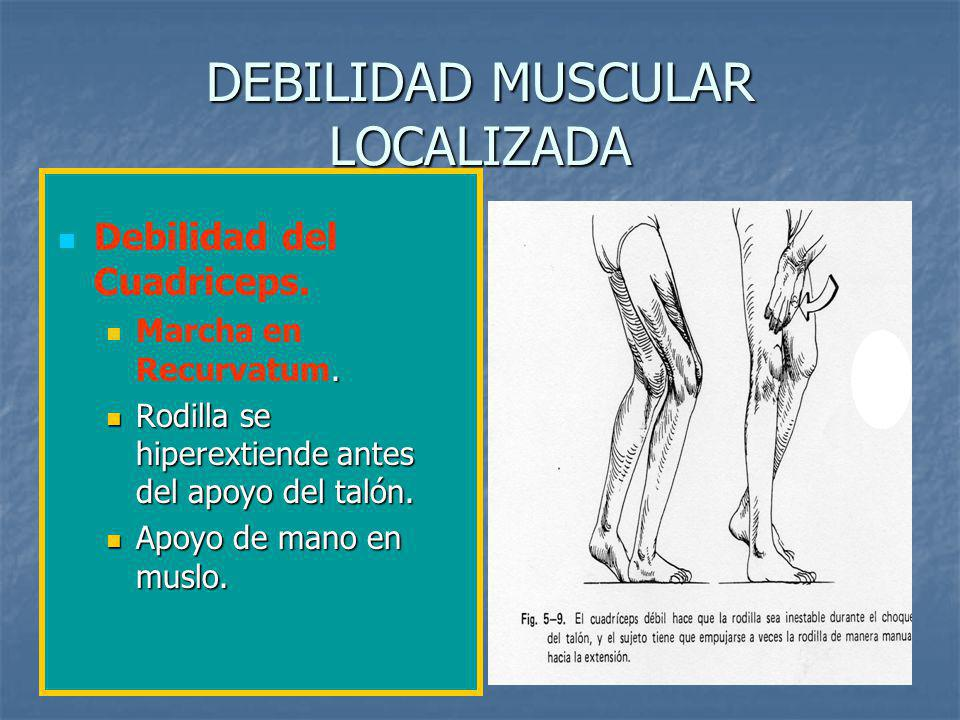 DEBILIDAD MUSCULAR LOCALIZADA Debilidad del Cuadriceps..