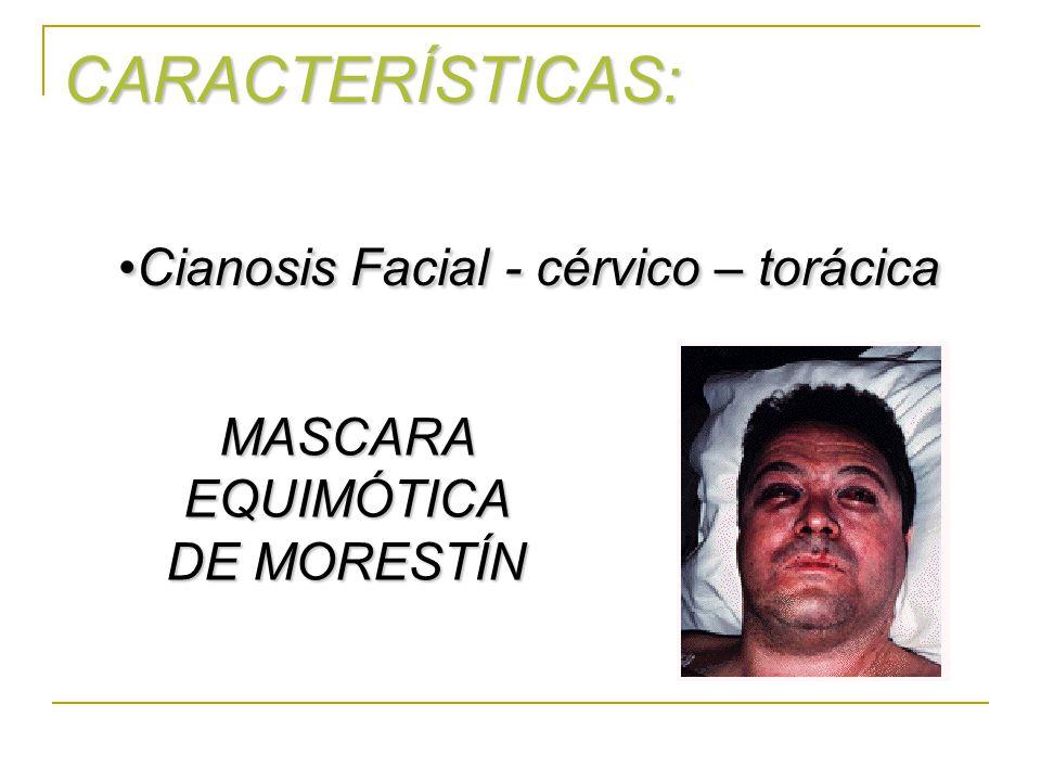 CARACTERÍSTICAS: Cianosis Facial - cérvico – torácicaCianosis Facial - cérvico – torácica MASCARA EQUIMÓTICA DE MORESTÍN