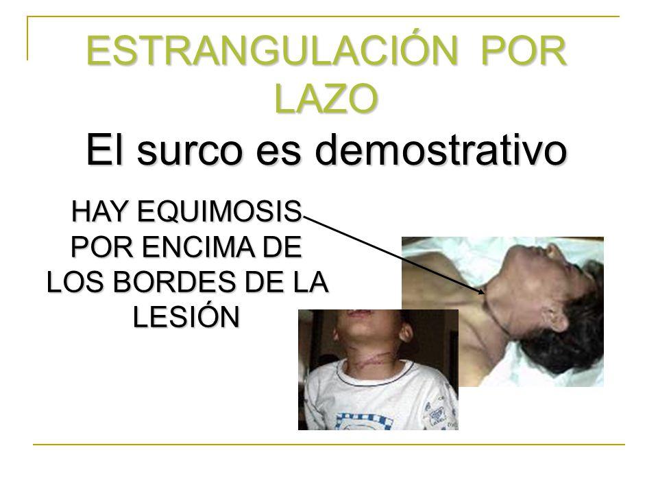 ESTRANGULACIÓN POR LAZO El surco es demostrativo HAY EQUIMOSIS POR ENCIMA DE LOS BORDES DE LA LESIÓN