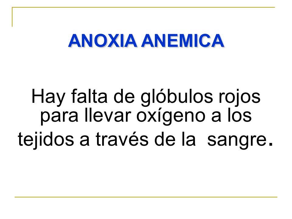 ANOXIA ANEMICA Hay falta de glóbulos rojos para llevar oxígeno a los tejidos a través de la sangre.