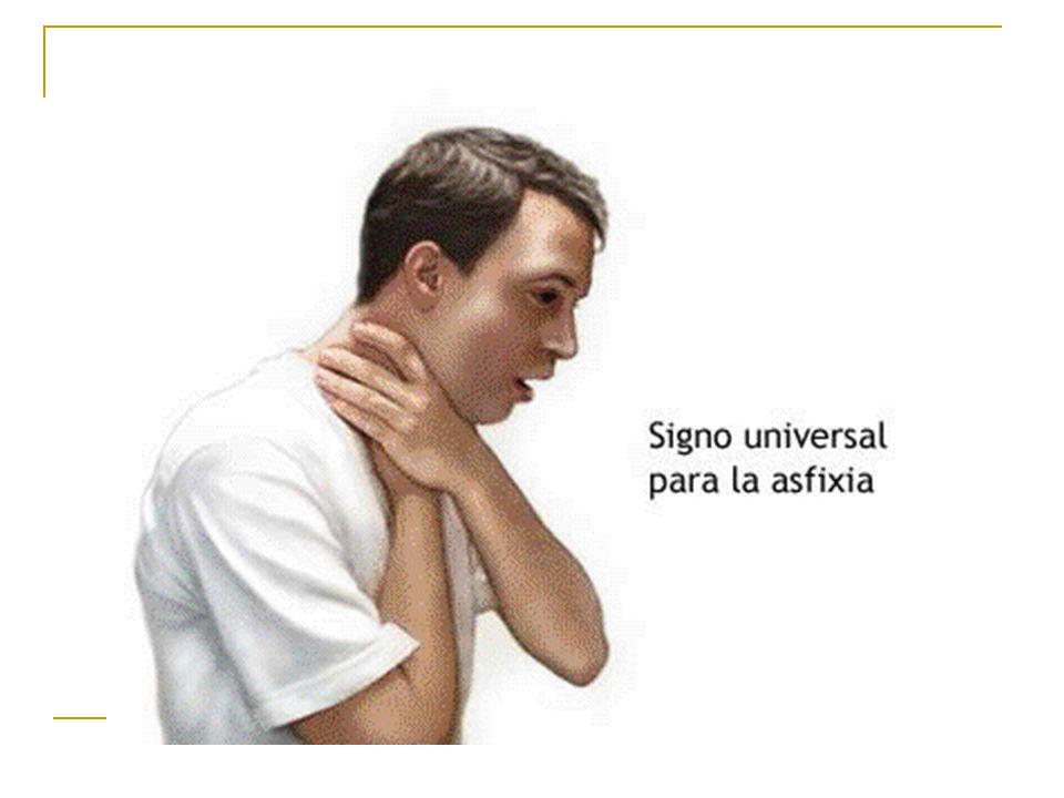 TIPOS DE ASFIXIAS: Por sofocación Compresiones del cuello Ambientales Sumersión.