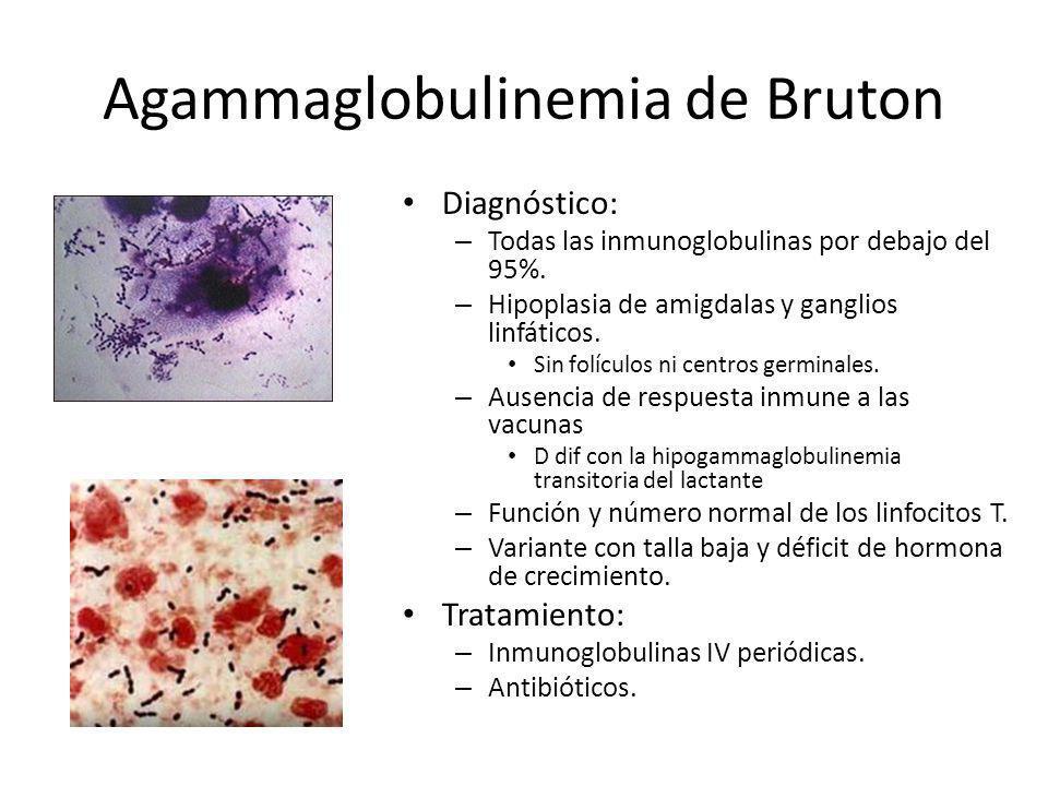 Diagnóstico: – Todas las inmunoglobulinas por debajo del 95%. – Hipoplasia de amigdalas y ganglios linfáticos. Sin folículos ni centros germinales. –