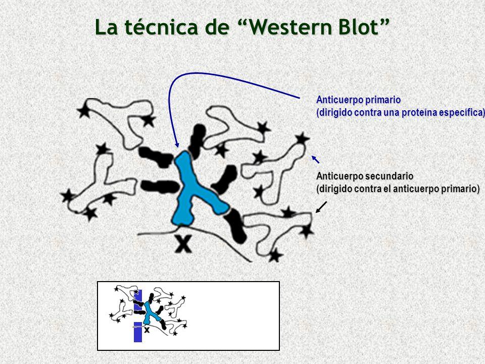 Anticuerpo primario (dirigido contra una proteína específica) Anticuerpo secundario (dirigido contra el anticuerpo primario) La técnica de Western Blo