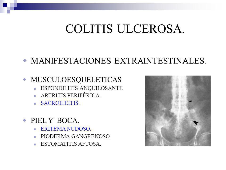 COLITIS ULCEROSA.OJO UVEITIS (IRITIS). EPISCLERITIS.
