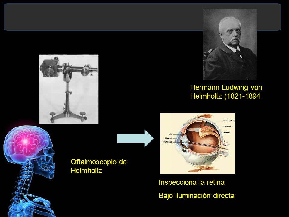Hermann Ludwing von Helmholtz (1821-1894) Oftalmoscopio de Helmholtz Inspecciona la retina Bajo iluminación directa
