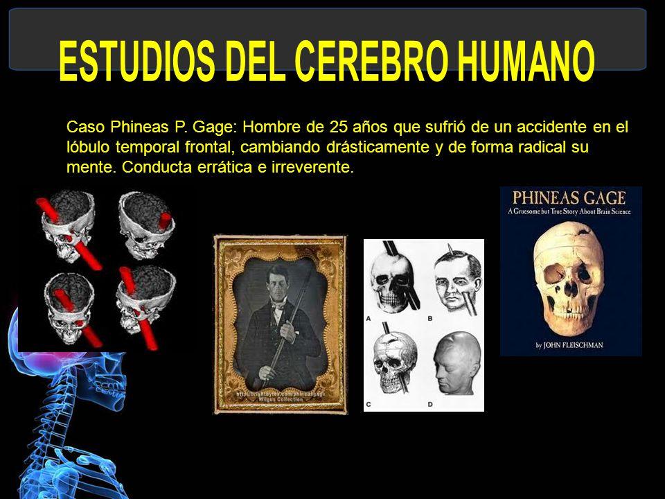 Caso Phineas P.