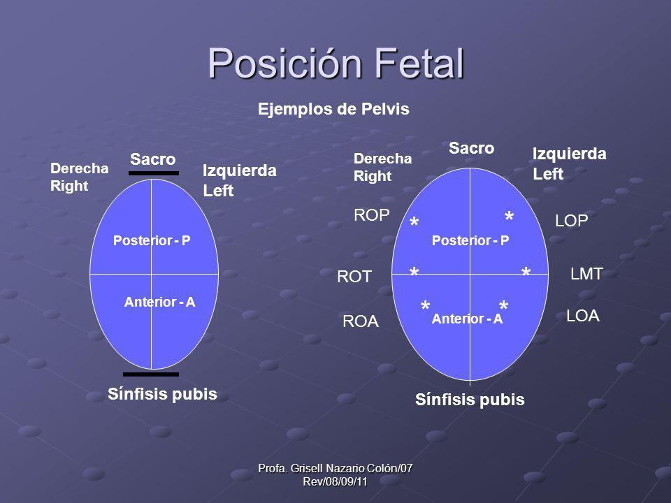 Profa. Grisell Nazario Colón/07 Rev/08/09/11 Posición Fetal Ejemplos de Pelvis Derecha Right Derecha Right Izquierda Left Izquierda Left Sacro Sínfisi