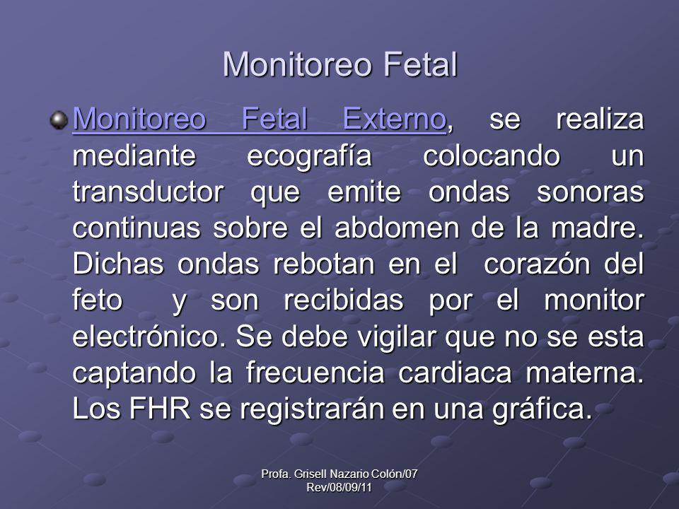 Profa. Grisell Nazario Colón/07 Rev/08/09/11 Monitoreo Fetal Monitoreo Fetal ExternoMonitoreo Fetal Externo, se realiza mediante ecografía colocando u