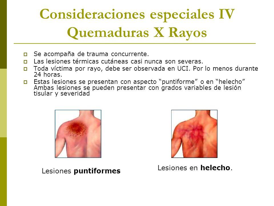 Consideraciones especiales IV Quemaduras X Rayos Se acompaña de trauma concurrente. Las lesiones térmicas cutáneas casi nunca son severas. Toda víctim