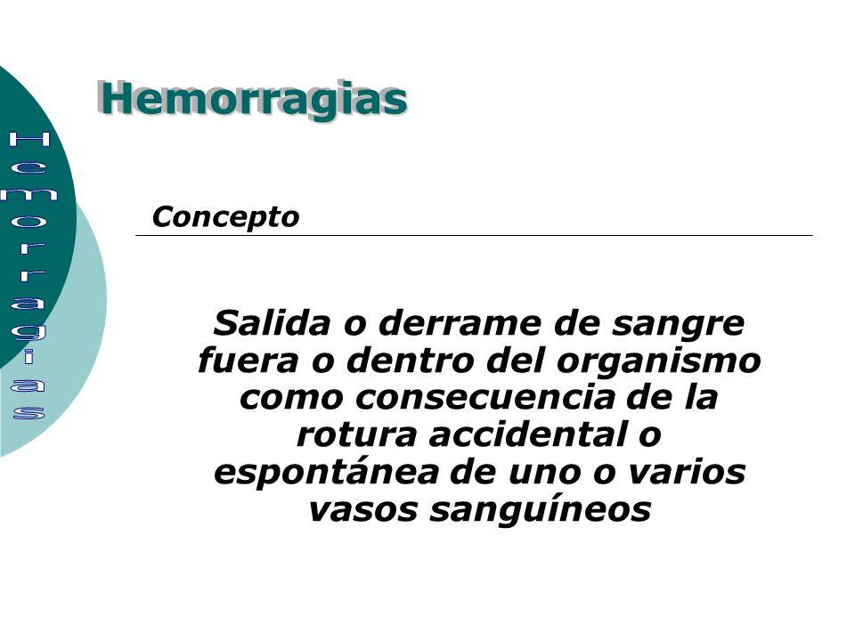 HemorragiasHemorragias Salida o derrame de sangre fuera o dentro del organismo como consecuencia de la rotura accidental o espontánea de uno o varios
