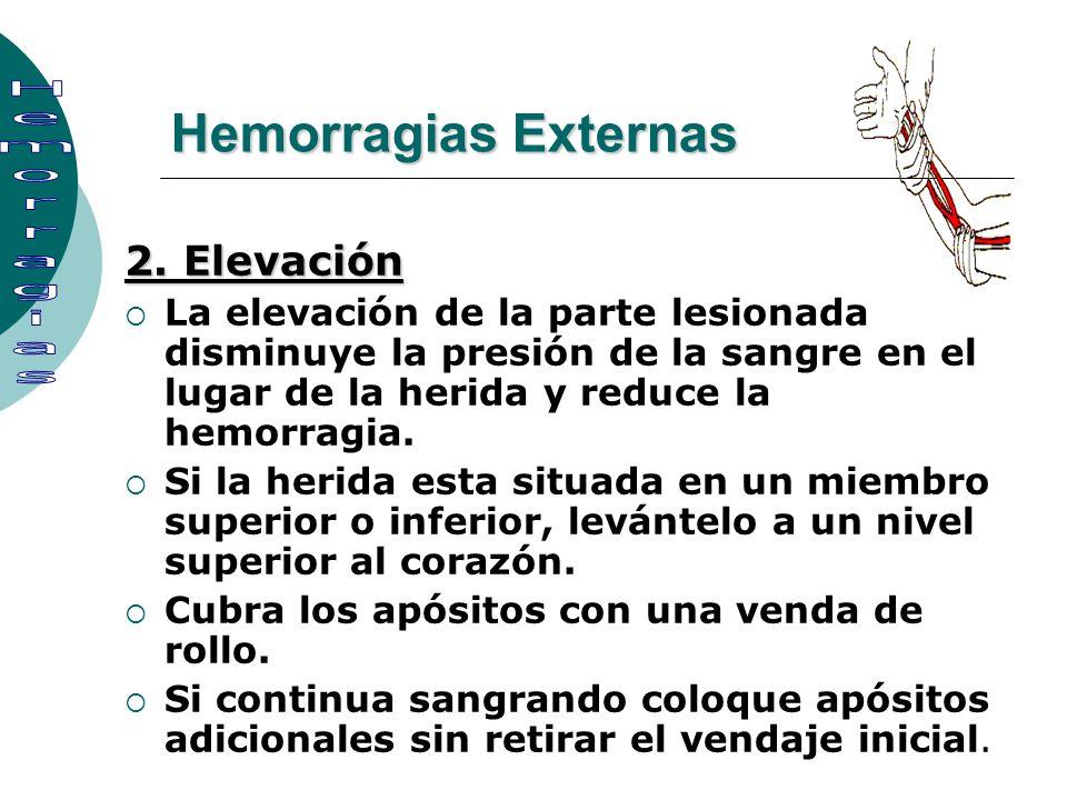 2. Elevación La elevación de la parte lesionada disminuye la presión de la sangre en el lugar de la herida y reduce la hemorragia. Si la herida esta s