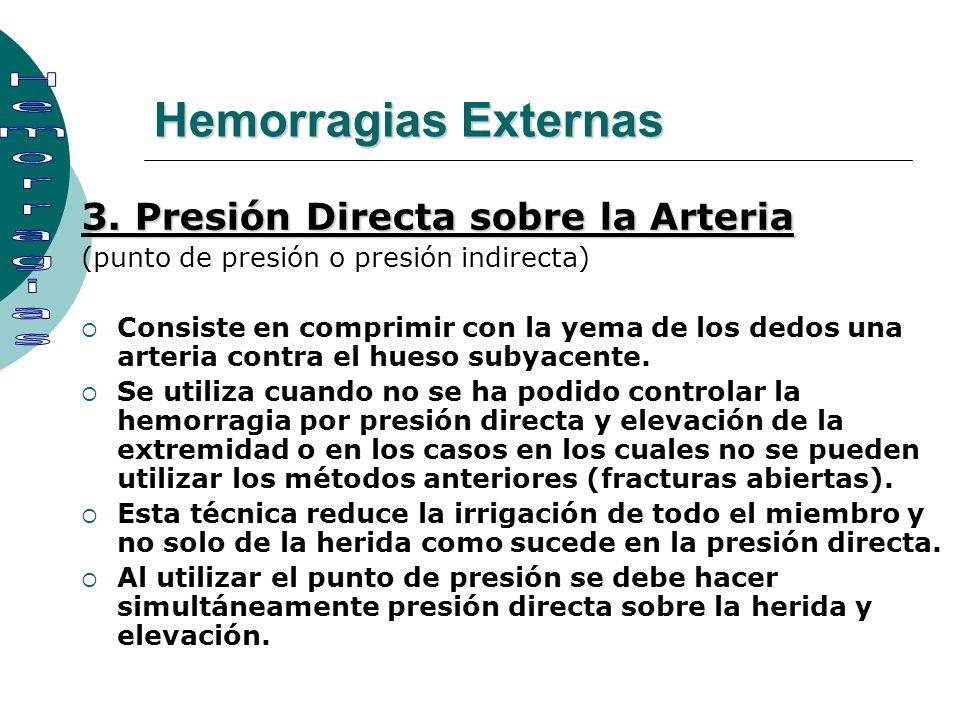 3. Presión Directa sobre la Arteria (punto de presión o presión indirecta) Consiste en comprimir con la yema de los dedos una arteria contra el hueso