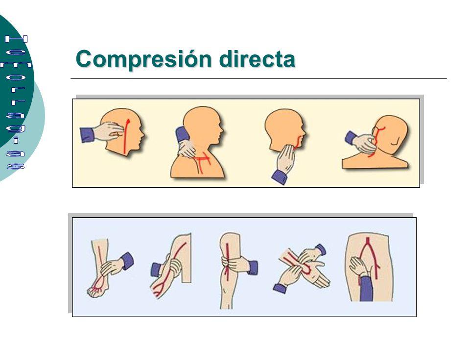 Compresión directa