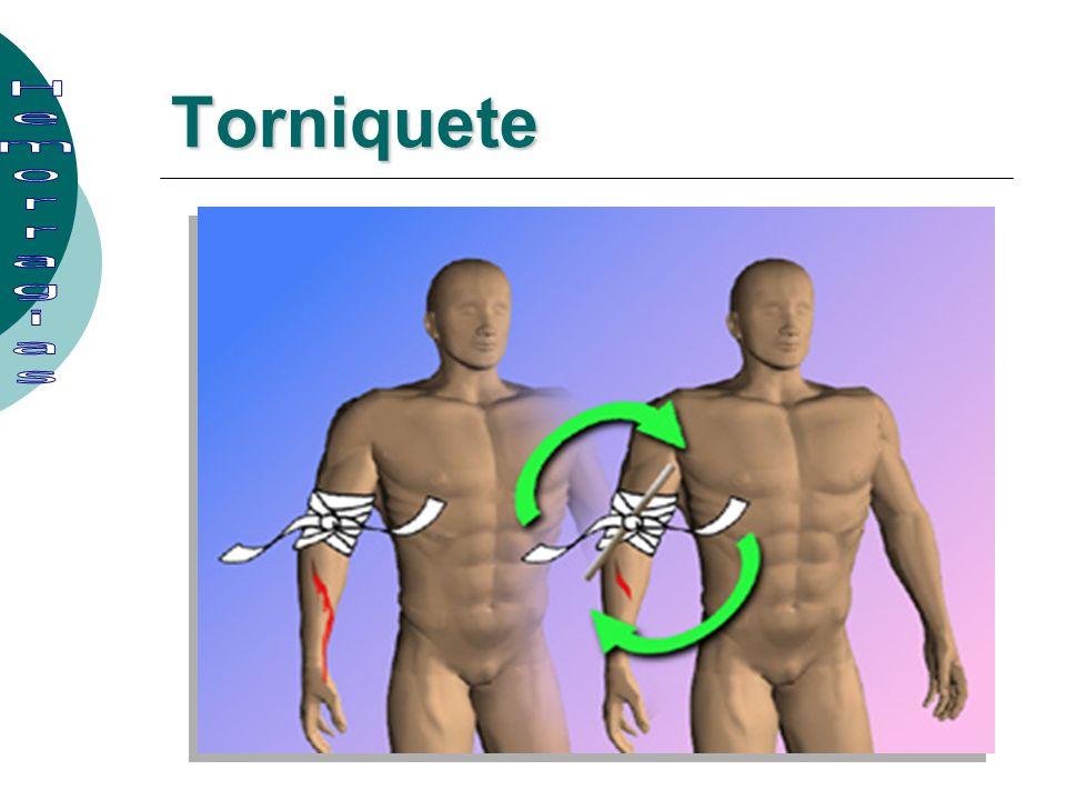 Torniquete