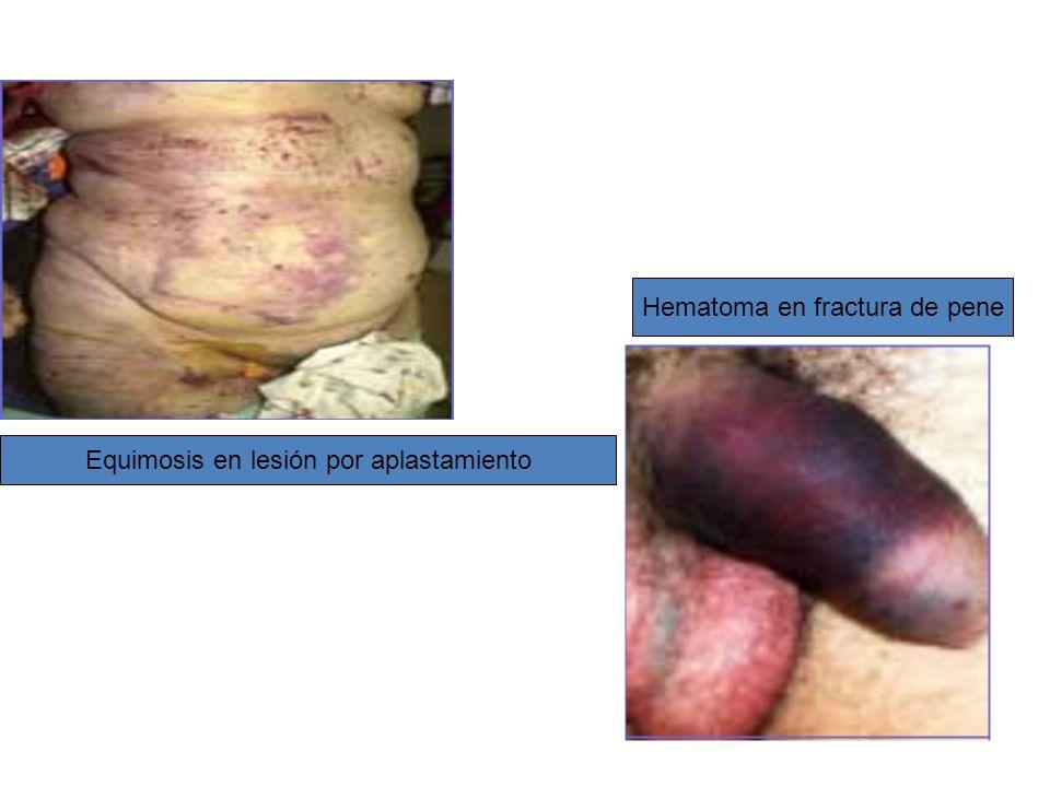 Hematoma en fractura de pene Equimosis en lesión por aplastamiento