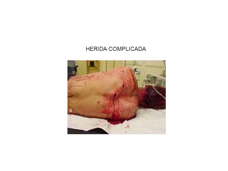 HERIDA COMPLICADA