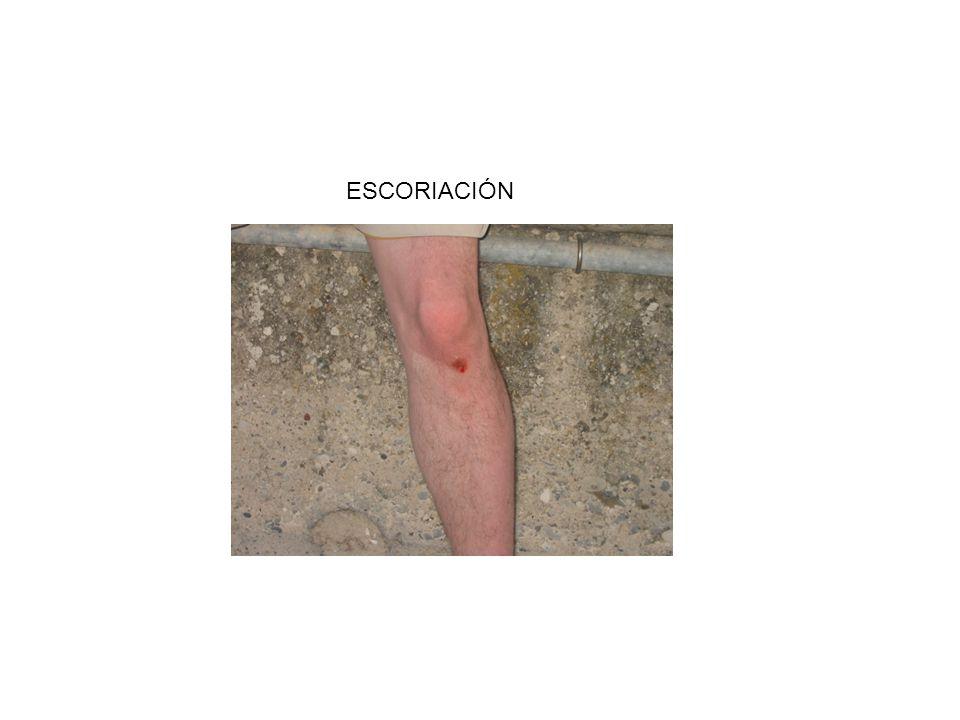 ESCORIACIÓN