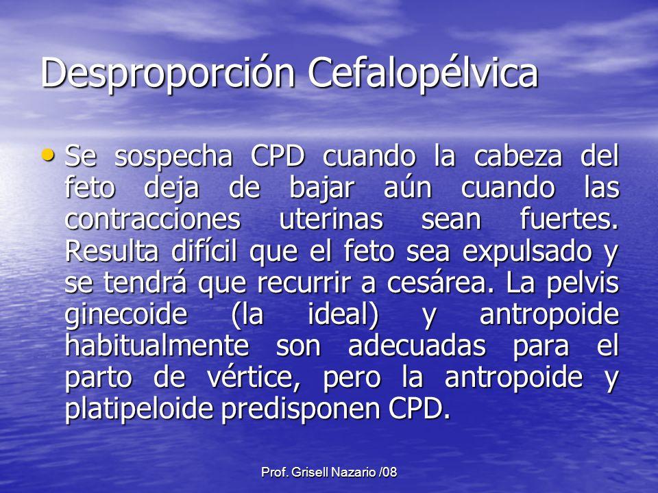 Prof. Grisell Nazario /08 Desproporción Cefalopélvica Se sospecha CPD cuando la cabeza del feto deja de bajar aún cuando las contracciones uterinas se