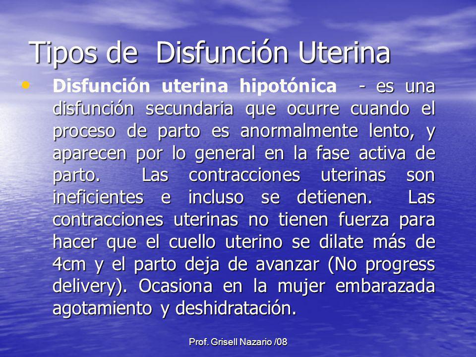Prof. Grisell Nazario /08 Tipos de Disfunción Uterina - es una disfunción secundaria que ocurre cuando el proceso de parto es anormalmente lento, y ap