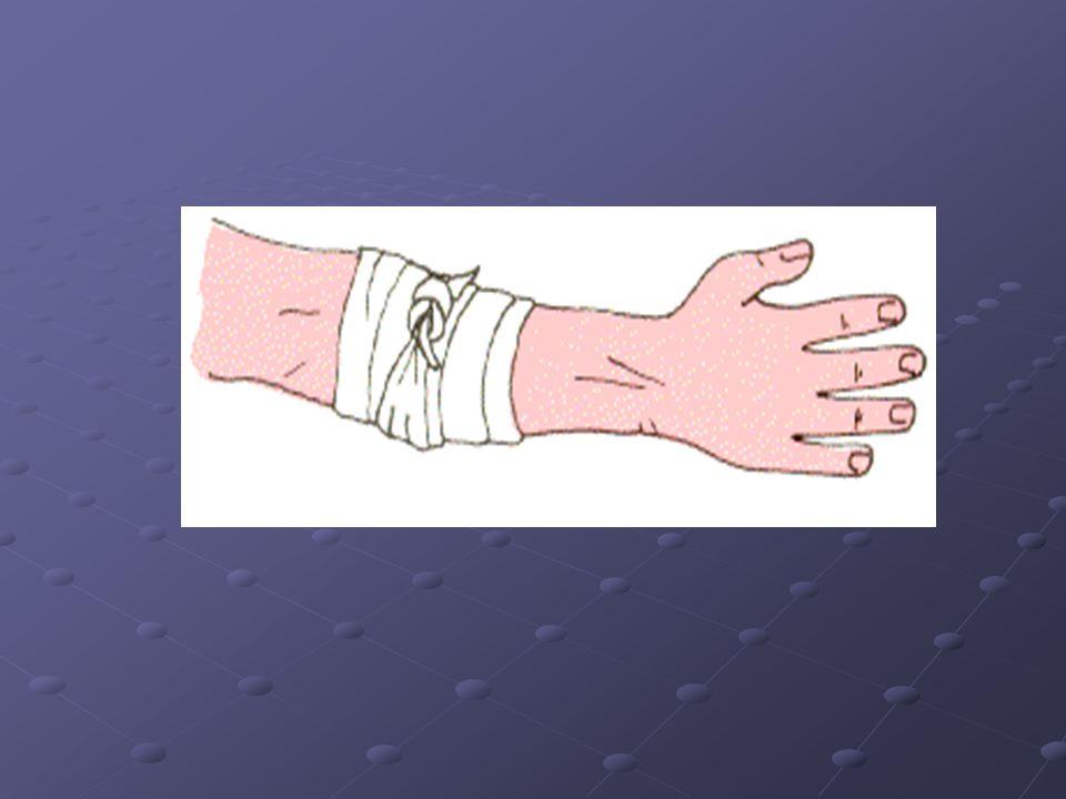 VENDAJE ESPIRAL Se utiliza generalmente en extremidades, en este caso la venda cubre el 2/3 de la vuelta anterior y se sitúa algo oblicua al eje de la extremidad.