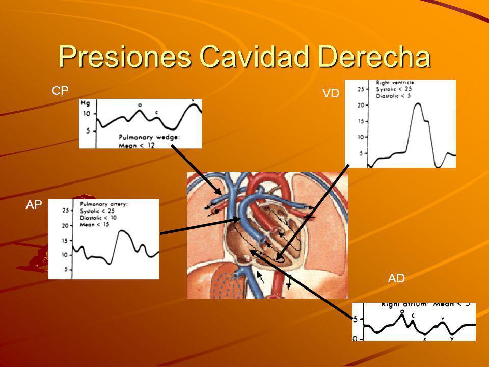 Presiones Cavidad Derecha CP AP VD AD