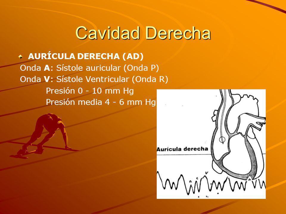 Cavidad Derecha AURÍCULA DERECHA (AD) Onda A: Sístole auricular (Onda P) Onda V: Sístole Ventricular (Onda R) Presión 0 - 10 mm Hg Presión media 4 - 6 mm Hg