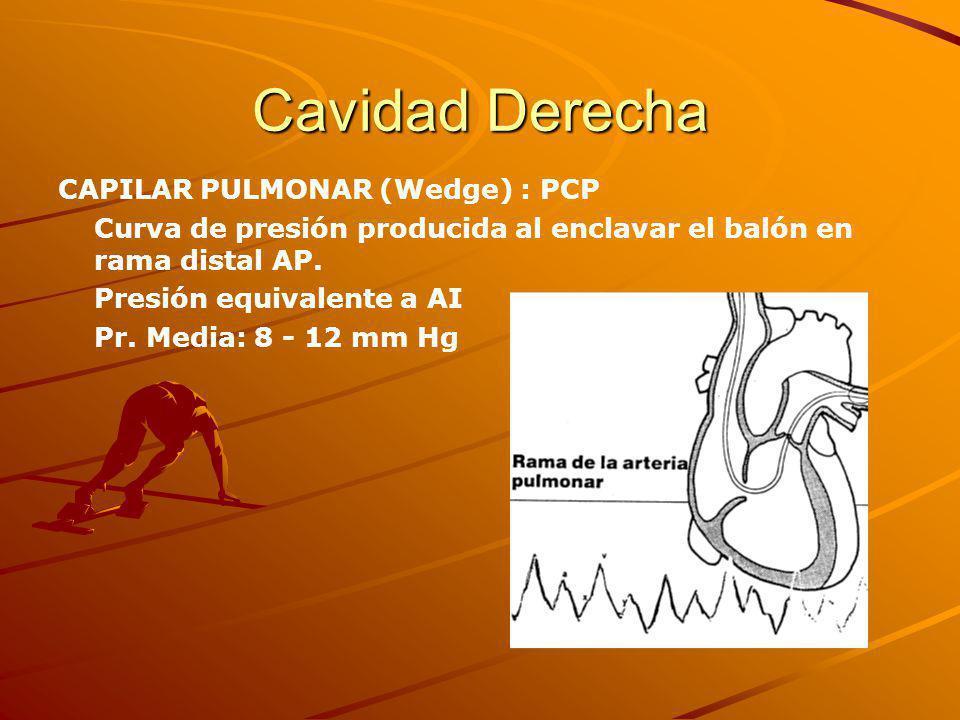 Cavidad Derecha CAPILAR PULMONAR (Wedge) : PCP Curva de presión producida al enclavar el balón en rama distal AP.