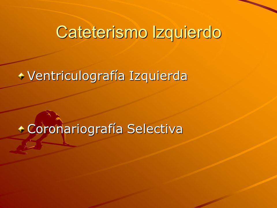 Cateterismo Izquierdo Ventriculografía Izquierda Coronariografía Selectiva