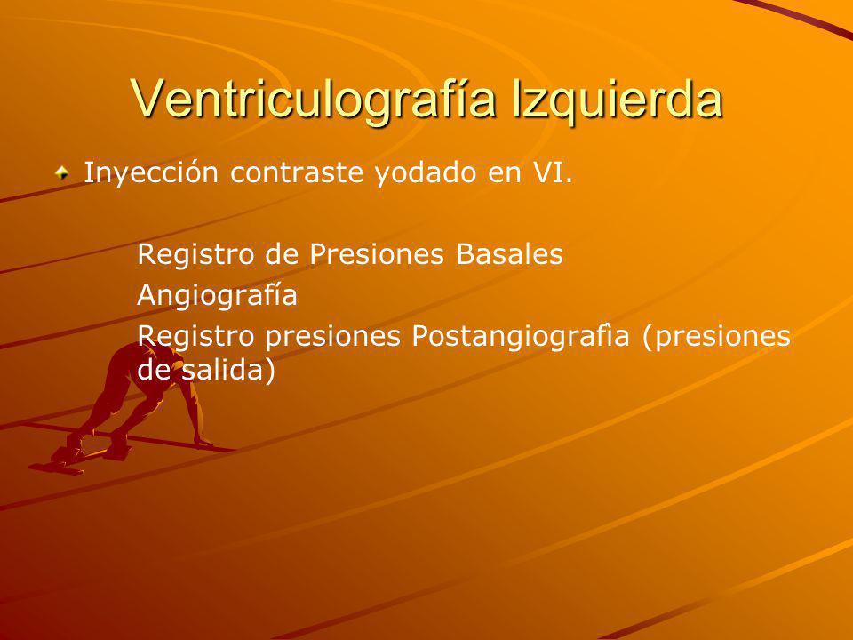 Ventriculografía Izquierda Inyección contraste yodado en VI.