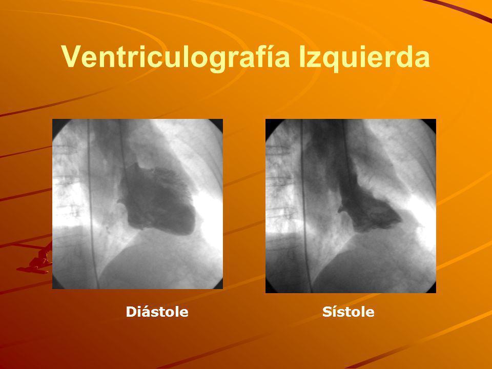 Ventriculografía Izquierda DiástoleSístole