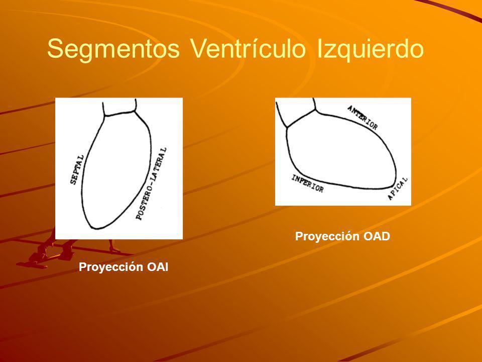 Proyección OAI Proyección OAD Segmentos Ventrículo Izquierdo