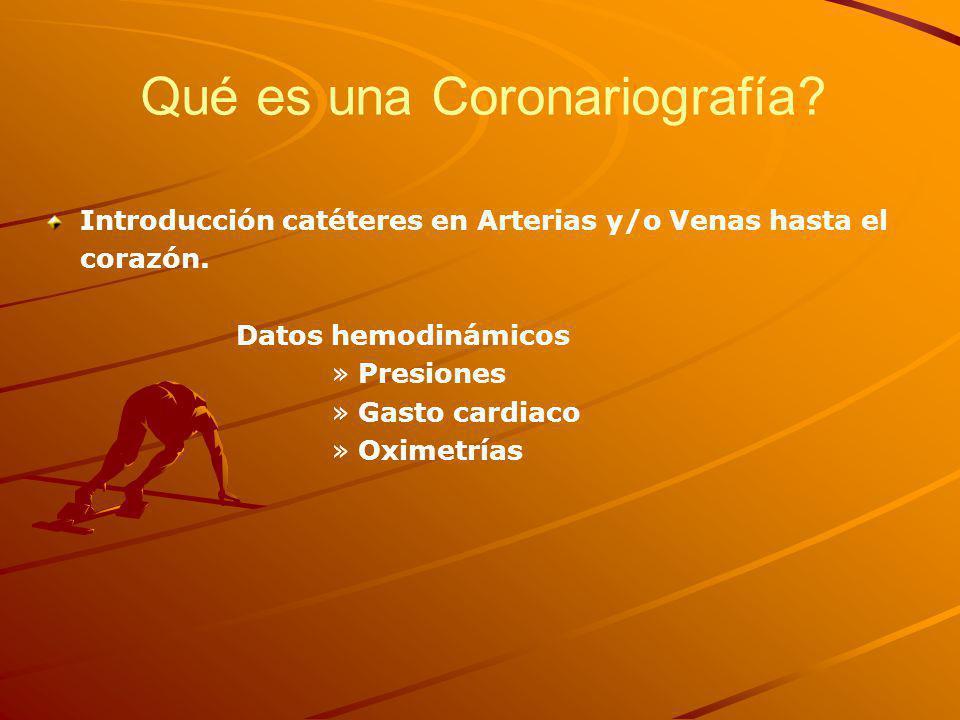 Introducción catéteres en Arterias y/o Venas hasta el corazón.