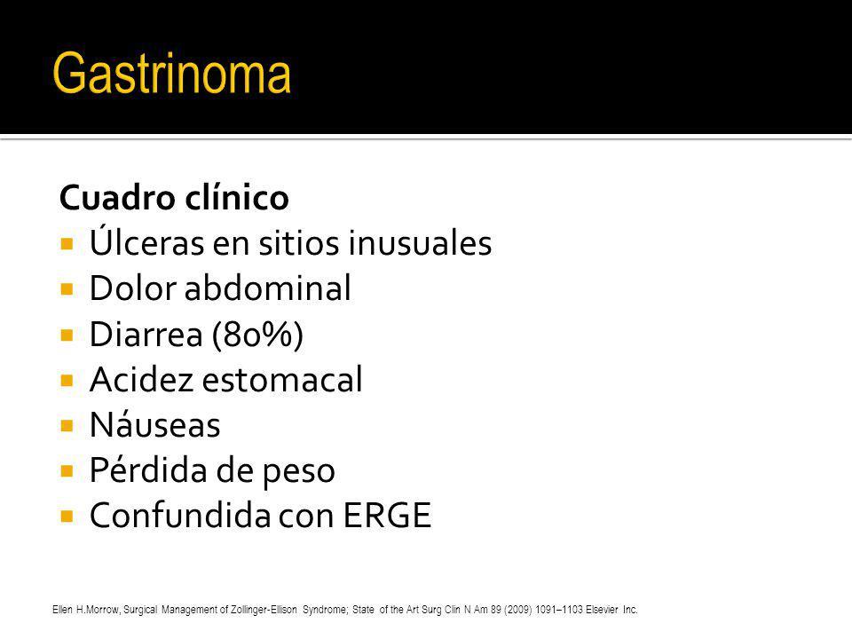 Cuadro clínico Úlceras en sitios inusuales Dolor abdominal Diarrea (80%) Acidez estomacal Náuseas Pérdida de peso Confundida con ERGE Ellen H.Morrow,