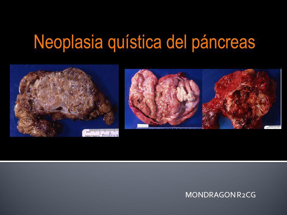 MONDRAGON R2CG Neoplasia quística del páncreas