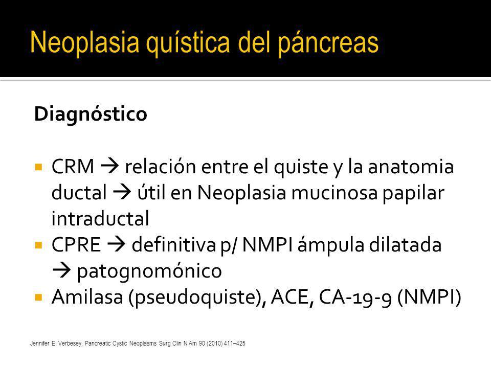Diagnóstico CRM relación entre el quiste y la anatomia ductal útil en Neoplasia mucinosa papilar intraductal CPRE definitiva p/ NMPI ámpula dilatada p