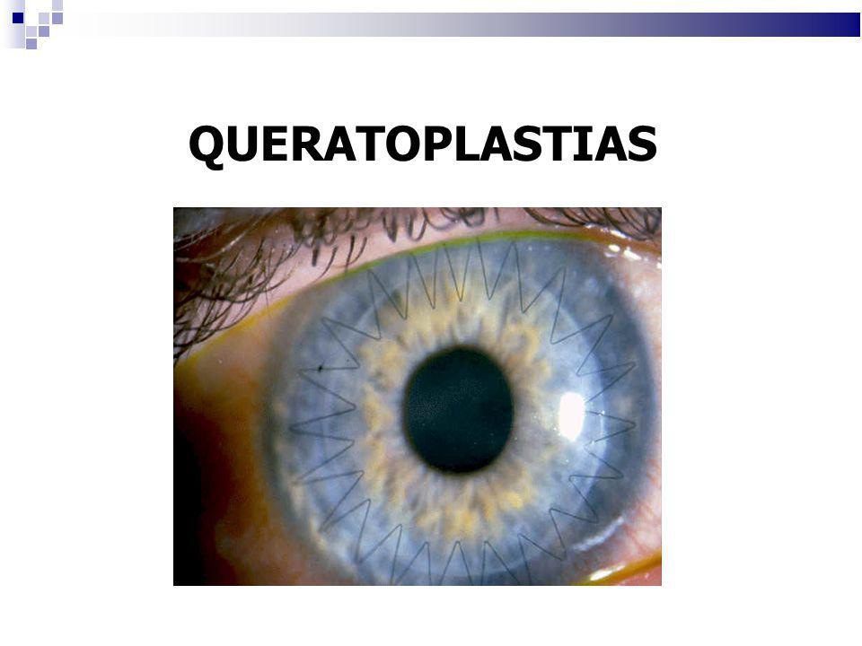 Procemientos sobre el cristalino Lentes ICL: Se mantiene cristalino Se implantan sobre cristalino, en pacientes no susceptibles de cirugia laser (alta miopia, corneas delgadas)