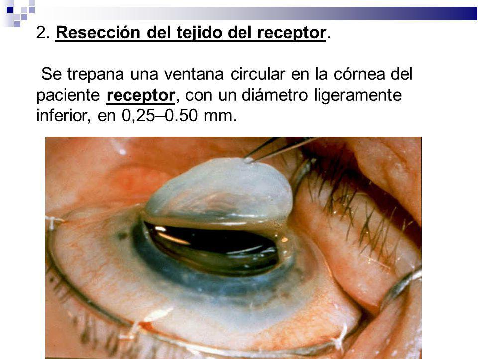 2. Resección del tejido del receptor. Se trepana una ventana circular en la córnea del paciente receptor, con un diámetro ligeramente inferior, en 0,2
