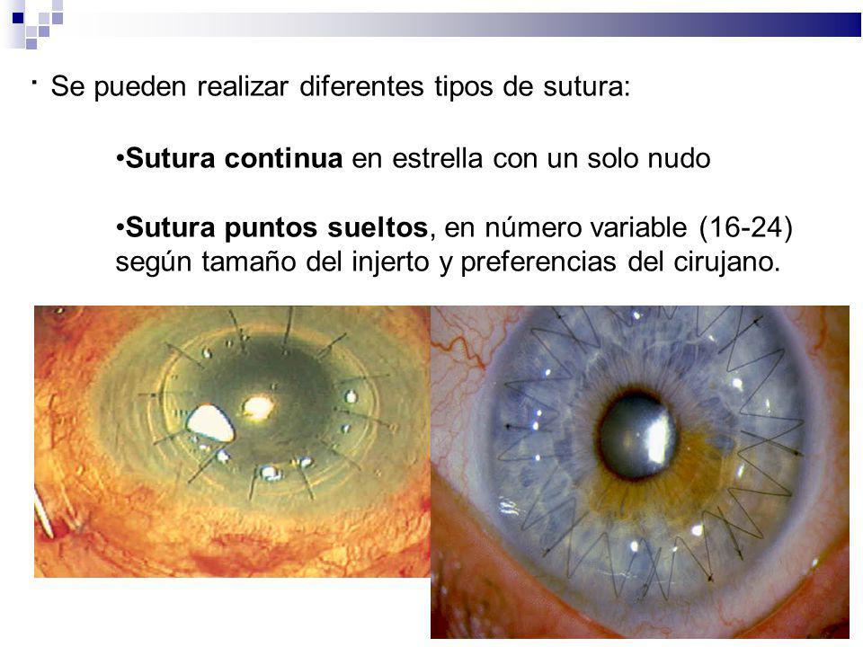 · Se pueden realizar diferentes tipos de sutura: Sutura continua en estrella con un solo nudo Sutura puntos sueltos, en número variable (16-24) según