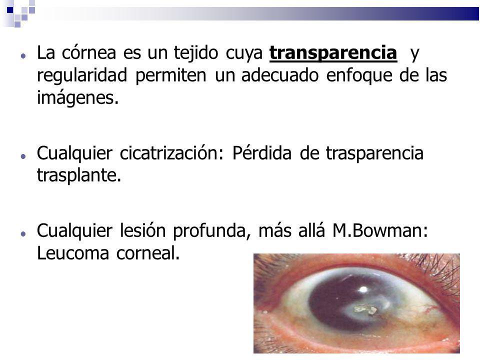 La córnea es un tejido cuya transparencia y regularidad permiten un adecuado enfoque de las imágenes. Cualquier cicatrización: Pérdida de trasparencia