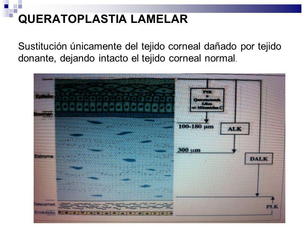 QUERATOPLASTIA LAMELAR Sustitución únicamente del tejido corneal dañado por tejido donante, dejando intacto el tejido corneal normal.