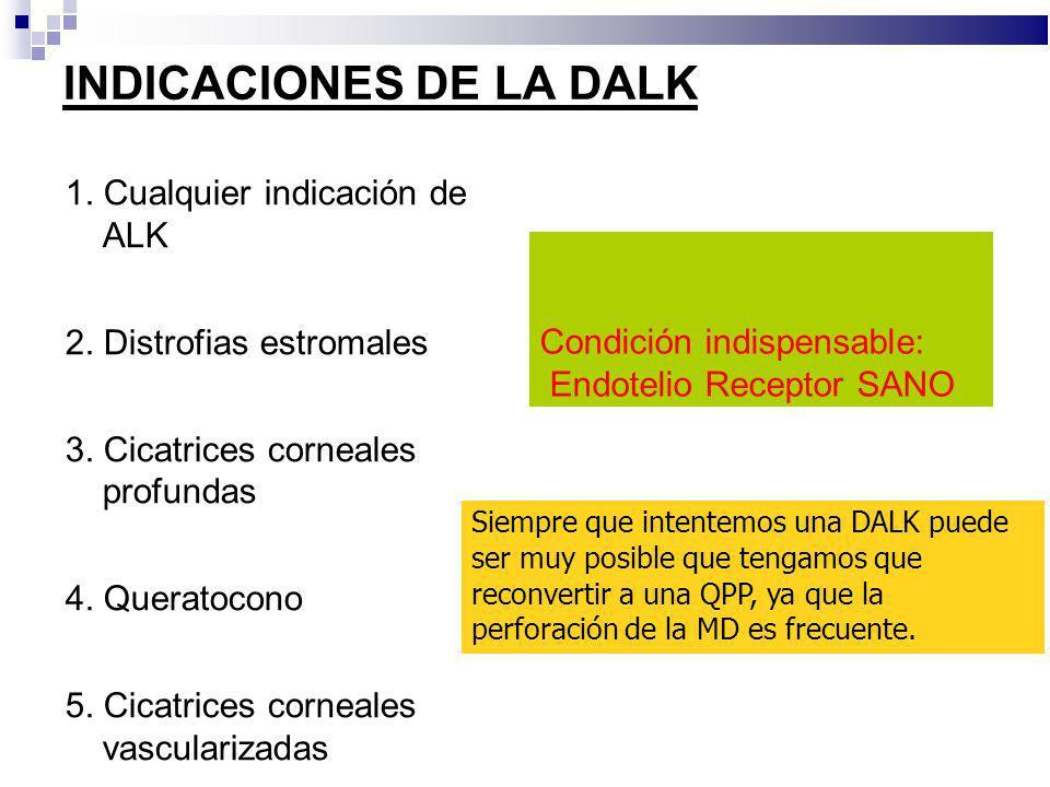 INDICACIONES DE LA DALK 1. Cualquier indicación de ALK 2. Distrofias estromales 3. Cicatrices corneales profundas 4. Queratocono 5. Cicatrices corneal