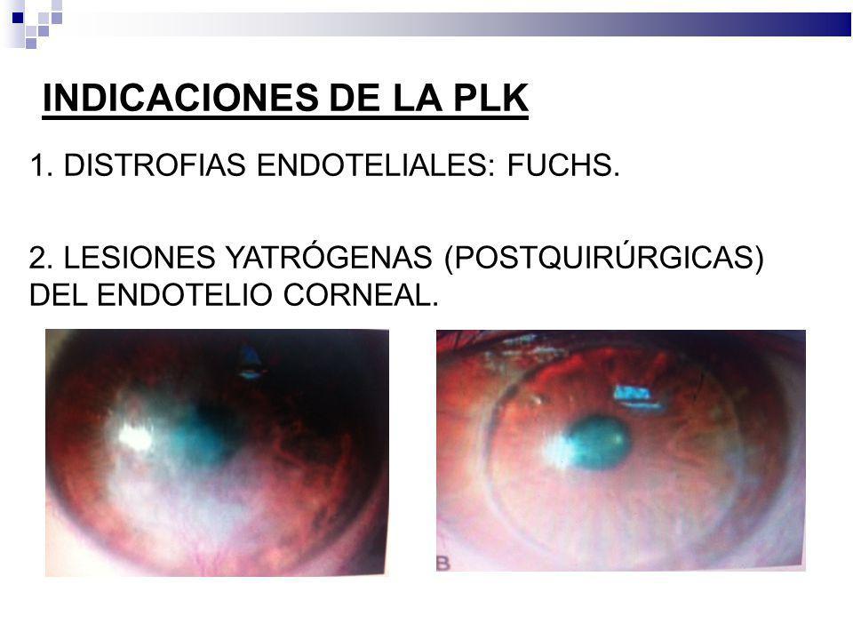 INDICACIONES DE LA PLK 1. DISTROFIAS ENDOTELIALES: FUCHS. 2. LESIONES YATRÓGENAS (POSTQUIRÚRGICAS) DEL ENDOTELIO CORNEAL.
