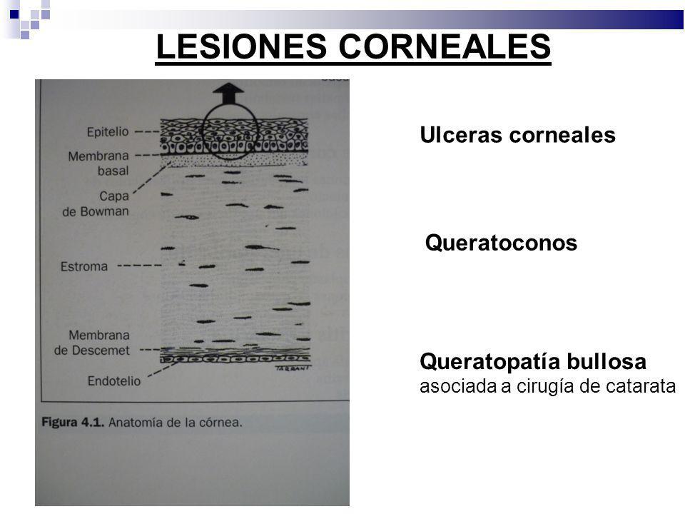 Ulceras corneales Queratoconos Queratopatía bullosa asociada a cirugía de catarata LESIONES CORNEALES
